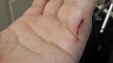 دست مجروح